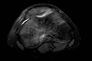 MRI of MPFL reconstruction