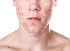 Young Man With Acne